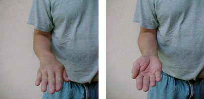 Physical Therapy - Hand & Wrist Exercise